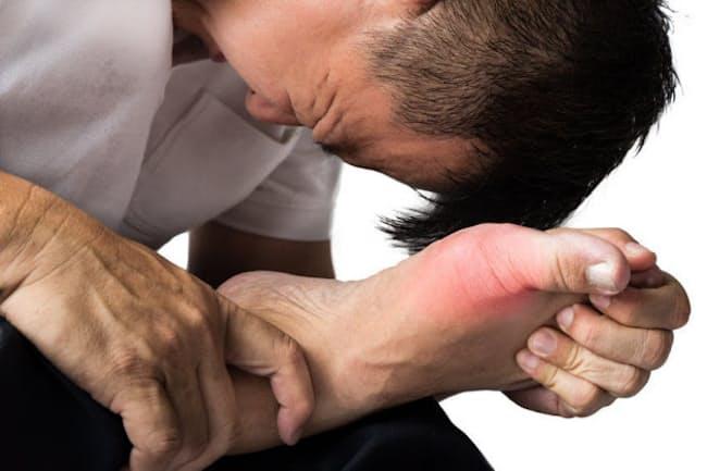 痛風の発症予防につながる4つの生活習慣とは?(C)thamkc-123RF